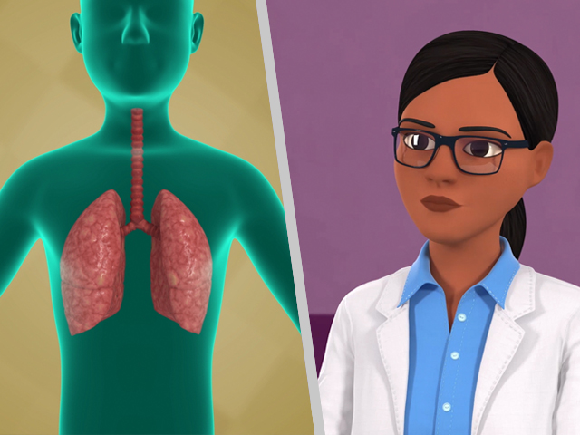 Play Lung Cancer Screening